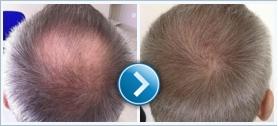 A Greffe de cheveux en Hongrie fájdalommentes beavatkozás